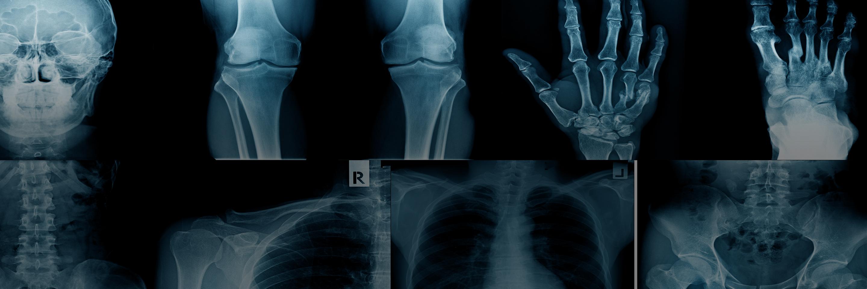 Orthopaedics at HCA UK | HCA Healthcare UK