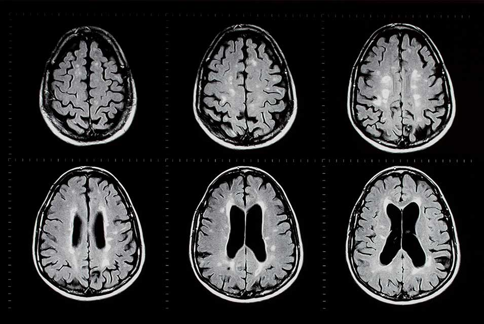 Brain scans showing MS lesions