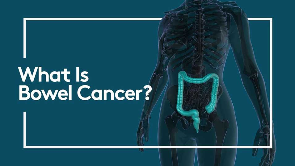 What is bowel cancer? Video thumbnail