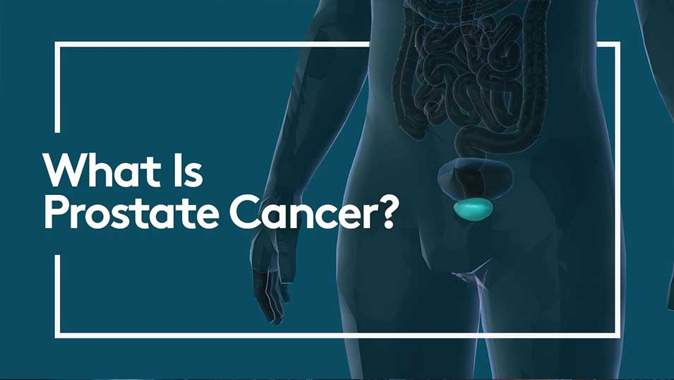 What is prostate cancer? Video thumbnail